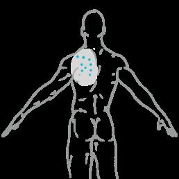 Triggerpunkte strahlen in Körperareale aus